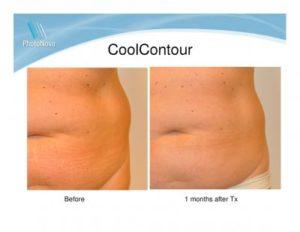 fettreducering med kyla